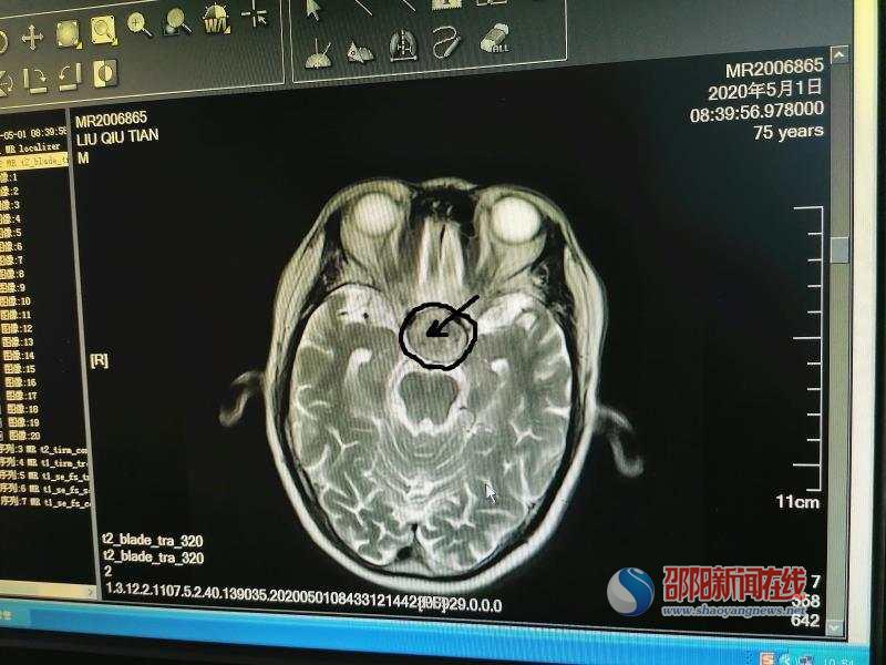 """隆回首例:神经外科成功为古稀老人内镜下切除""""垂体瘤"""""""